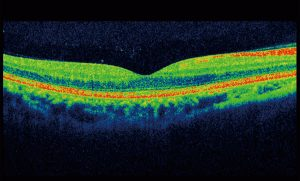 Photo scan of Retinal Photography